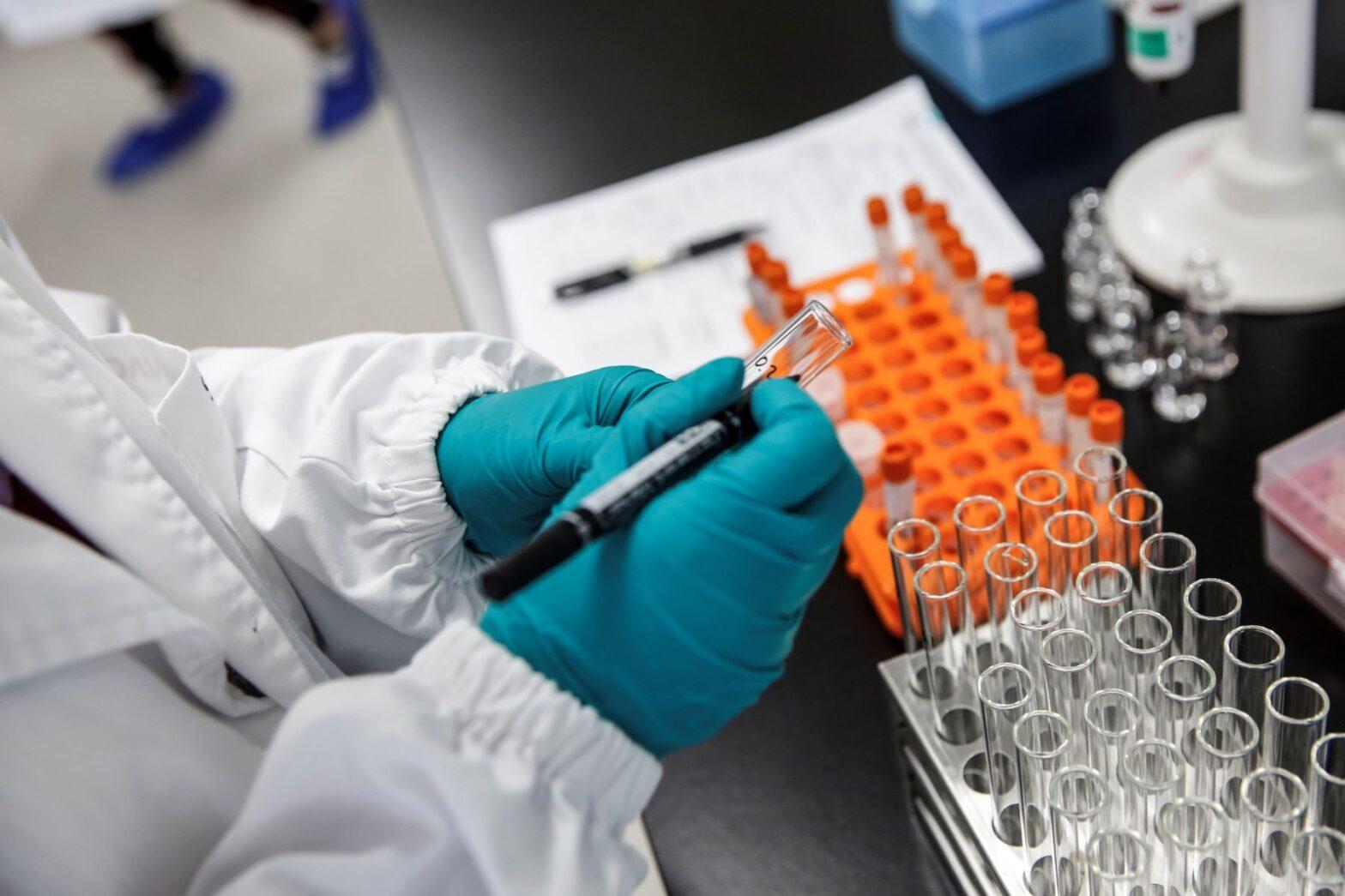 Laboratorio chino Sinovac prevé aplicar su vacuna masivamente a principios de 2021