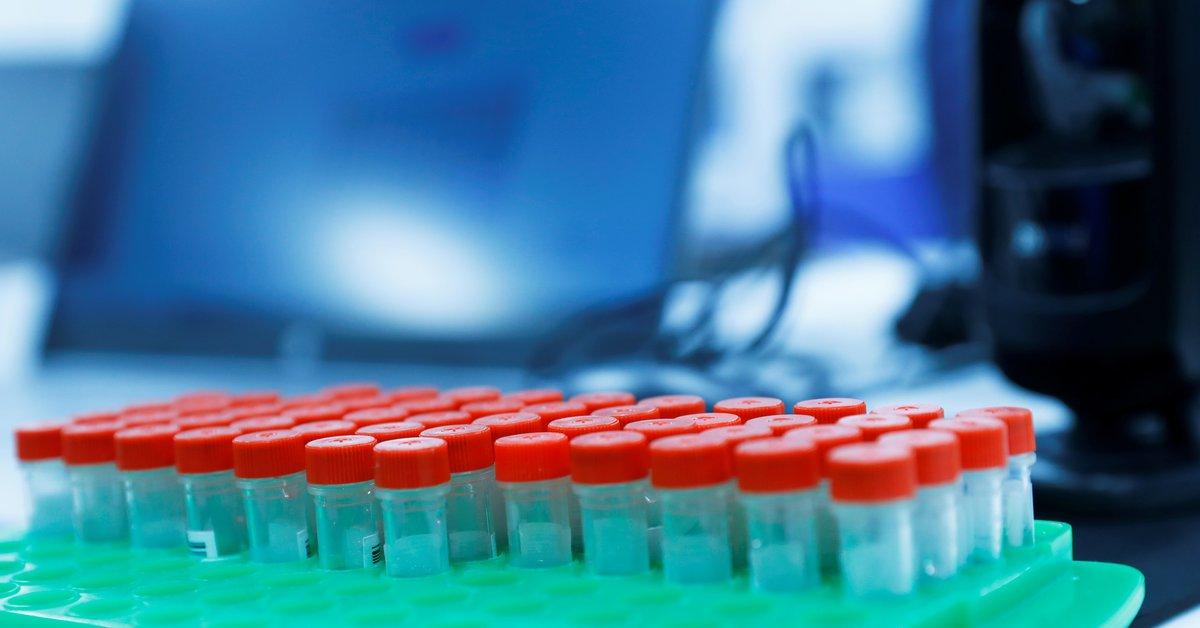 Científicos de la Universidad de Oxford desarrollaron un test de COVID-19 que da resultados en 5 minutos